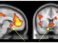 Социальные сети – конфеты для мозга