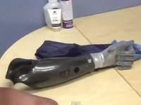 Американский повар получил бионическую руку