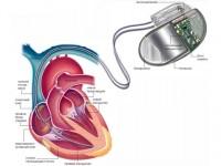 Американцы создали систему защиты кардиостимуляторов от хакеров