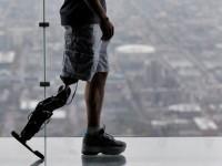 Роботизированный протез управляется нервными импульсами