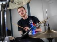 Музыканту создали роботизированный протез для игры на ударных