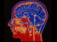 Мозговые имплантаты через 30 лет будут использоваться повсеместно и помогут зарабатывать