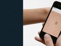 В Испании создали приложение для диагностики заболеваний кожи