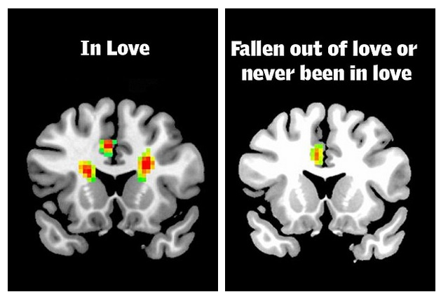 brainlove