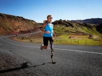 В Исландии начались испытания протеза ноги, который управляется силой мысли