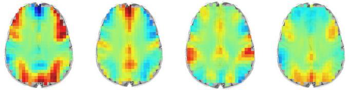 МРТ-сканирование головы показало мозговую активность в продолжении четырех стадий решения задачи. Источник: Университет Карнеги-Меллона