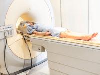 Машинне навчання розпізнає депресивний стан під час сканування мозку