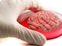 Органоферма в лабораторії або як побудувати справжній мозок