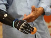 Біонічні технології, які змінюють життя людей з інвалідністю